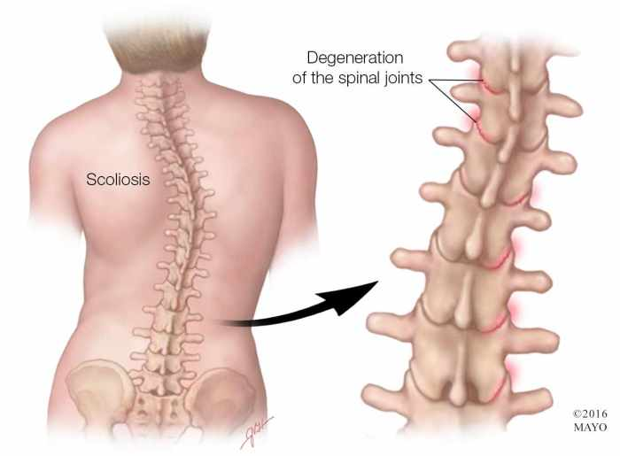 a-medical-illustration-of-a-spine-with-scoliosis-highlighting-degeneration-of-the-spinal-joints-original.jpg